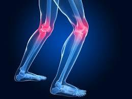 علاج خشونة الركبة نهائيا
