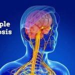 تشخيص مرض التصلب العصبي المتعدد