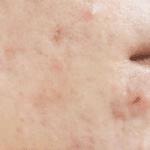 خلطات علاج الحبوب الحمراء الملتهبة الوجه بسرعة