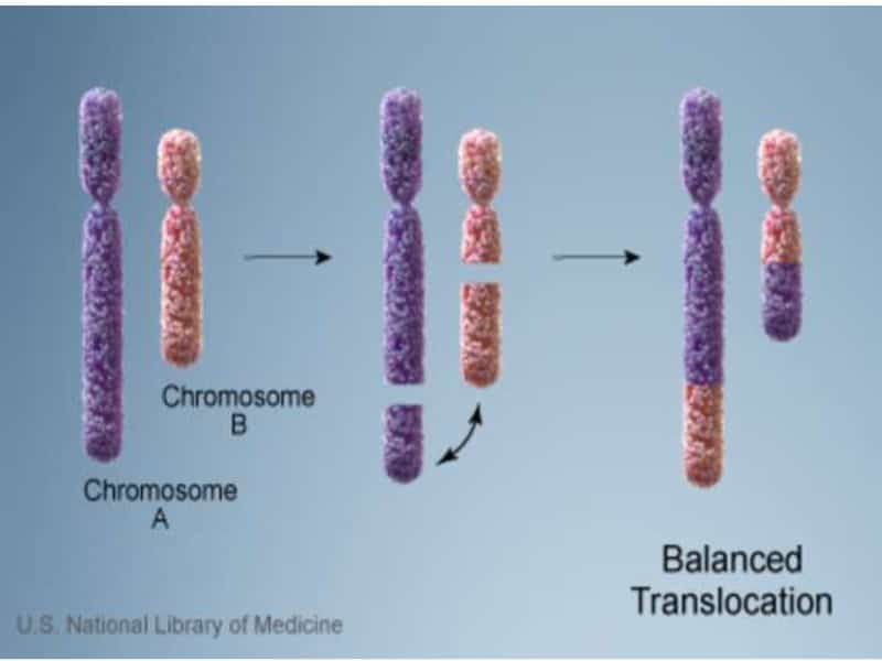 هل يوجد علاج لتشوه الكروموسومات