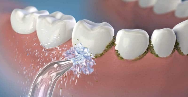 جهاز تنظيف الاسنان بالماء