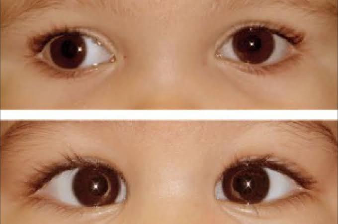 حول العين المفاجئ عند الأطفال