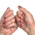 علاج وجع الأظافر بعد الحنة