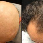 أقوى علاج لإنبات الشعر للرجال