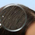 علاج القشرة في الشعر من أول مرة